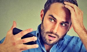 Đàn ông làm việc quá 8 tiếng mỗi ngày sẽ hói đầu nhanh gấp hai lần bình thường