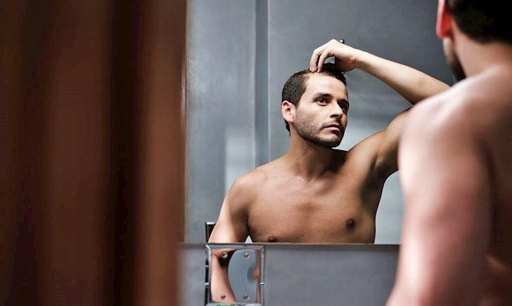 Tóc rụng nhiều dẫn đến hói sớm ở đàn ông 30 - Và đây là lý do