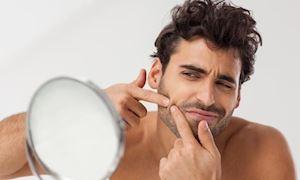 4 lý do khiến da lên mụn thường xuyên ở nam giới
