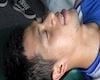 Video clip: Đình Trọng nén đau tập vật lý trị liệu