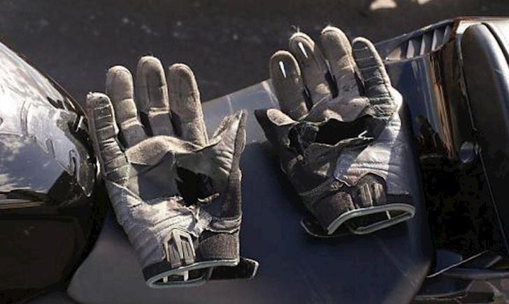 Chẳng may gặp nạn, mới thấy găng tay quan trọng cỡ nào