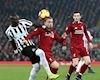 Tructiepbongda: Link xem trực tiếp Liverpool vs Newcastle 18h30 ngày 14/9